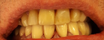 Cosmetic dental restoration with Crown, Bridge and Composite bonding treatments.